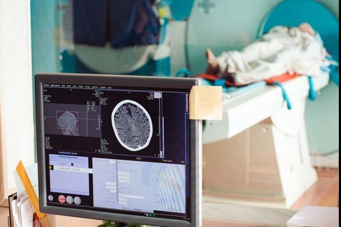 Росстат оценил доступность КТ и МРТ для пациентов в регионах