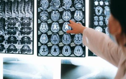 Исследование: лекарства от сахарного диабета обладают нейропротективным действием